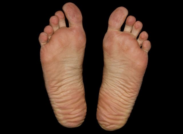 ほてって眠れない人の足の裏の画像